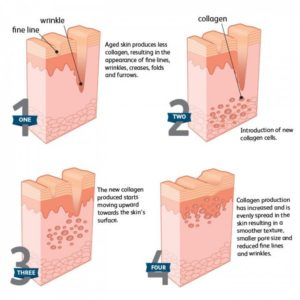 How to build collagen in skin