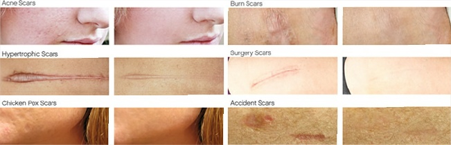 Skinception Dermefface FX7 Scar Reduction Therapy Before and After