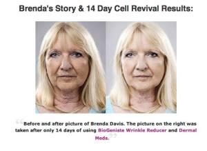 biogeniste wrinkle reducer and dermal meds