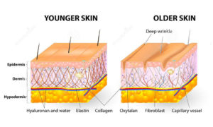 Retinol increases elastin