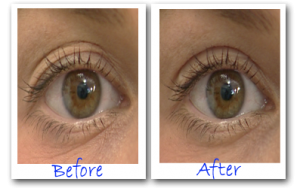 eye secrets before and after