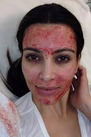 Vampire facial Kim kardashian