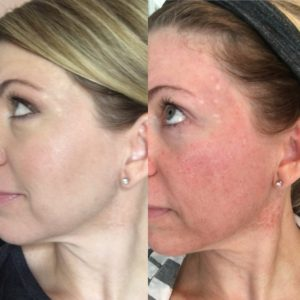 Microneedling before and after photo