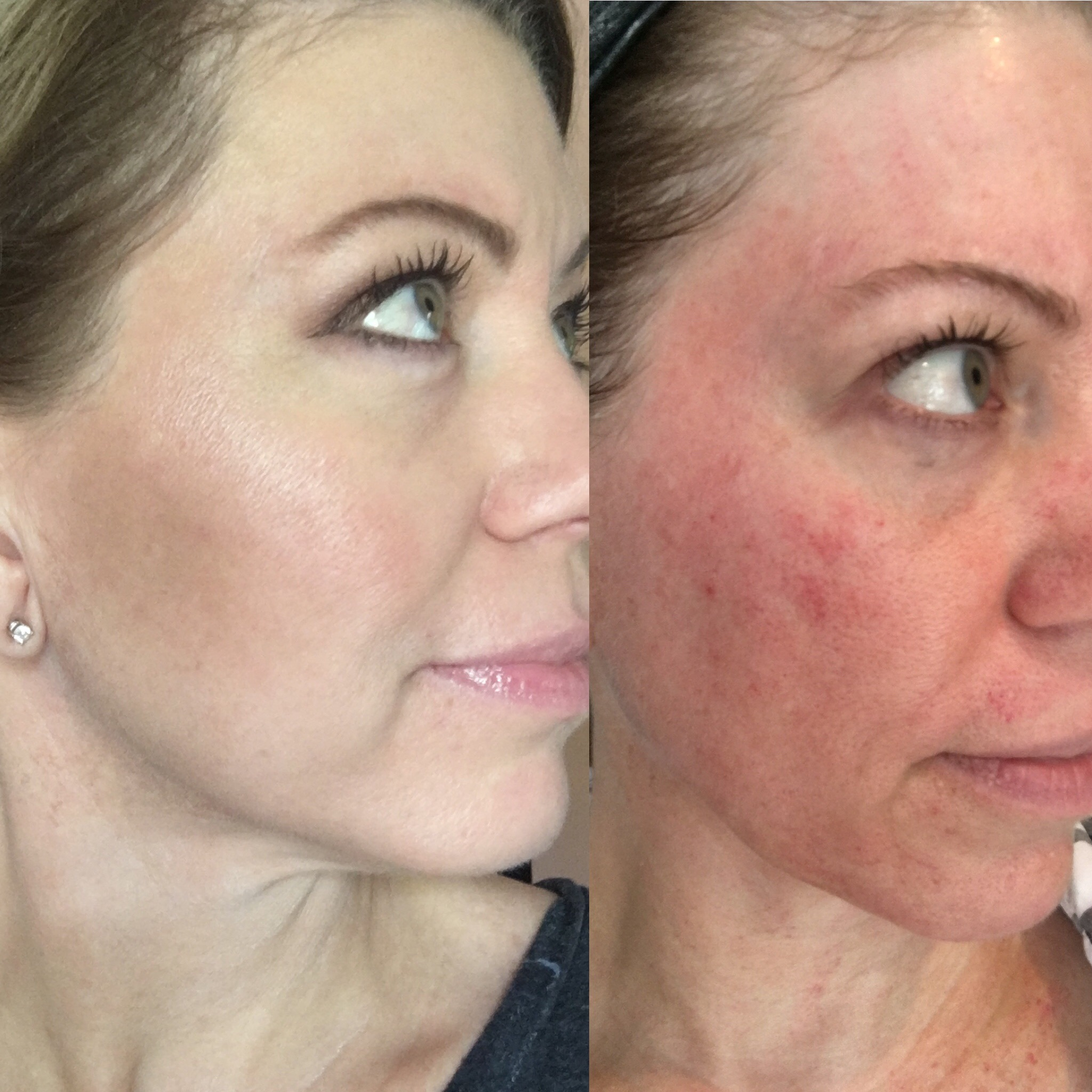Microneedling Before And After Women S Blog Talk