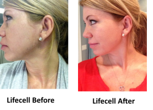 lifecell before and after