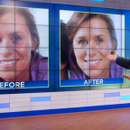 Dr Oz Before and After