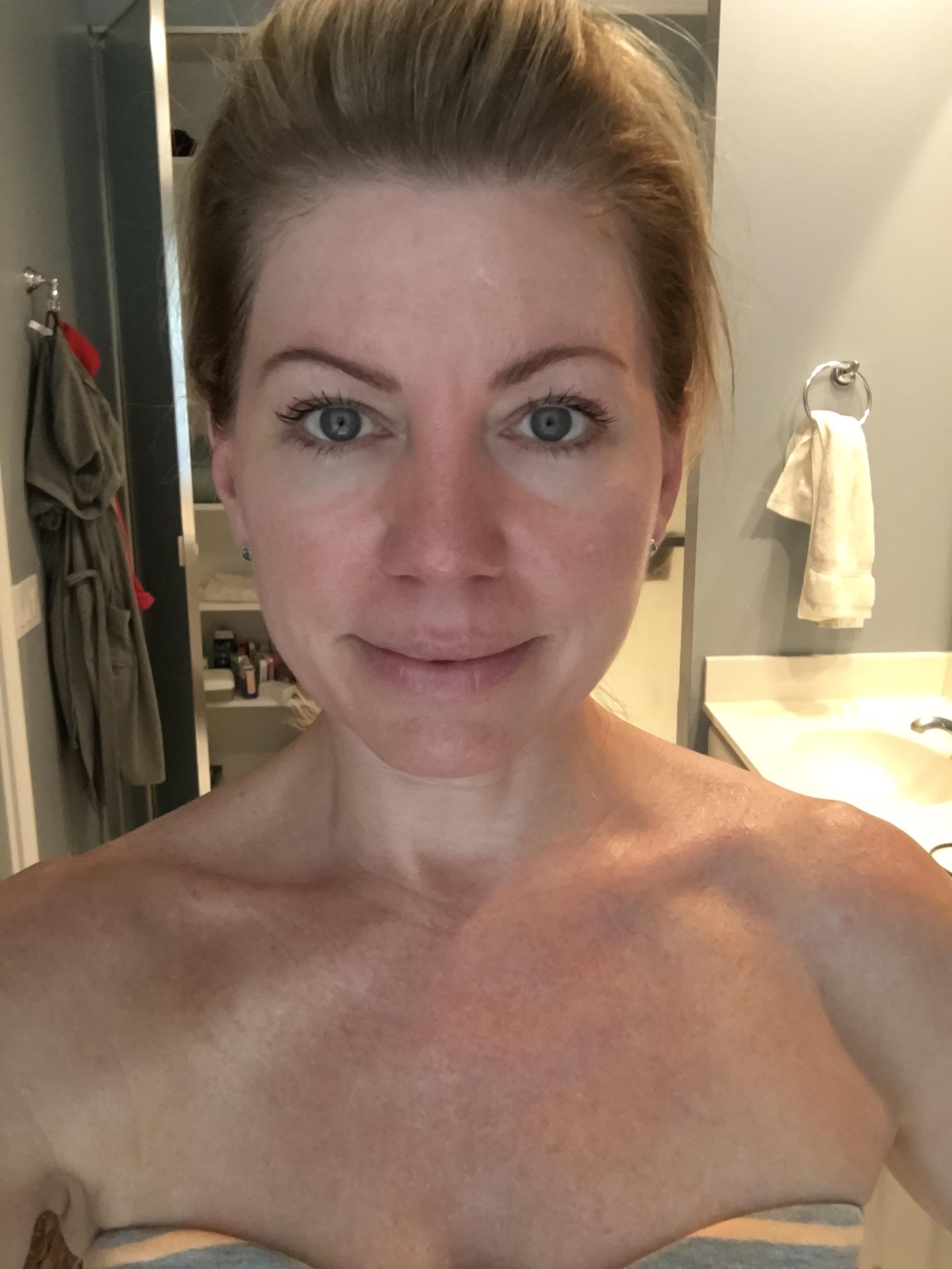 red light for collagen