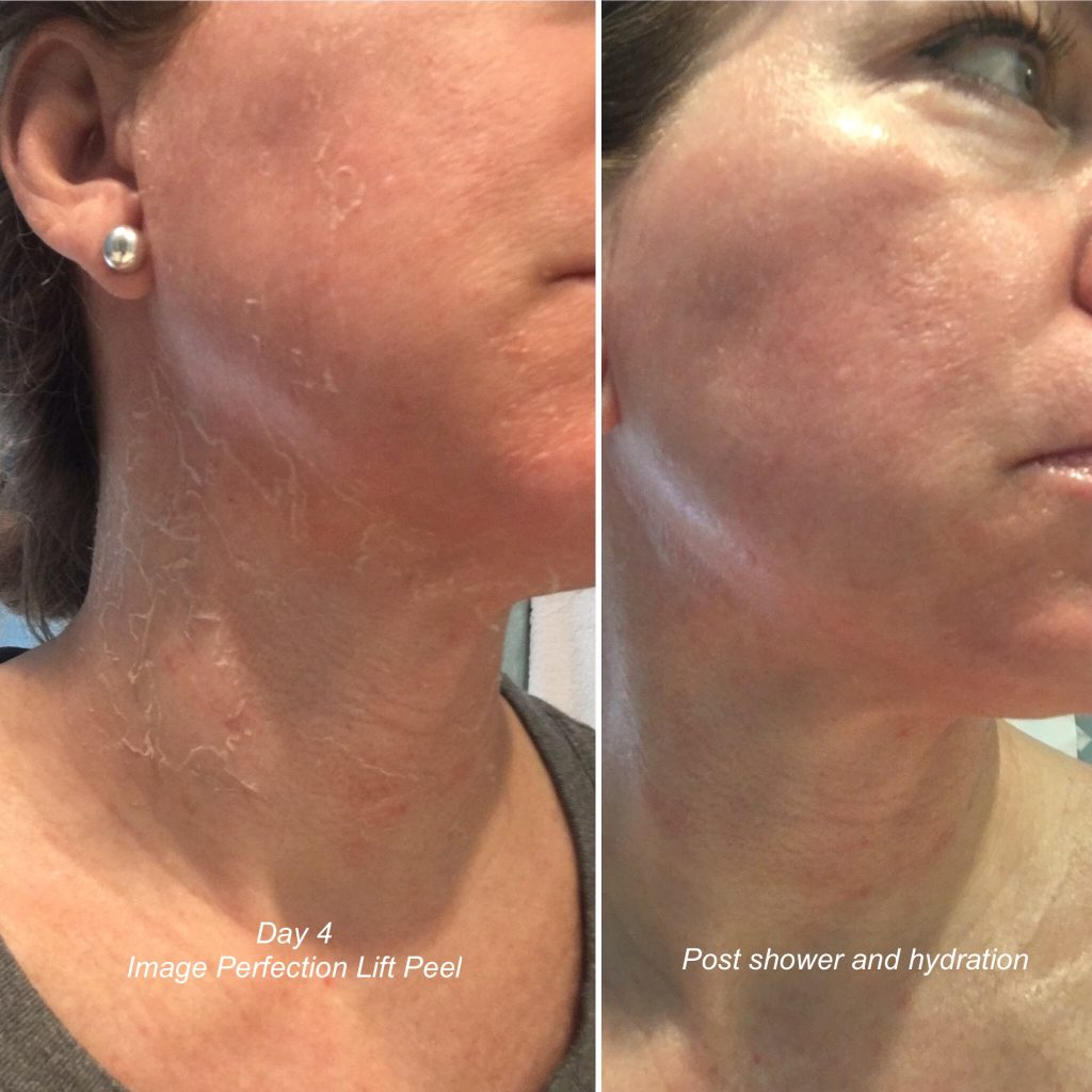 perfection lift peel results