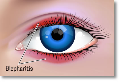 Eye creams for Blepharitis
